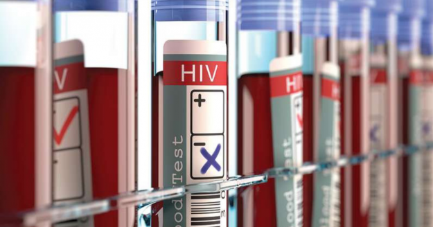 Less Than a Week After a Second Man Is Said to be Cured from HIV, Another Case Surfaces
